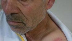 Şanlıurfa'da sağlık çalışanları darbedildi