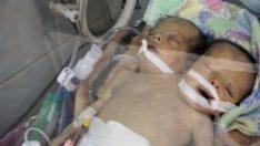 Yemenli yapışık ikizler kurtarılamadı