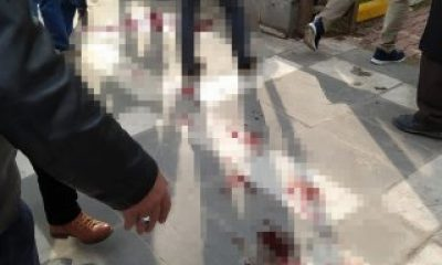 Viranşehir'de park yeri kavgasında 7 kişi yaralandı